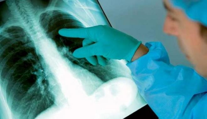 Cazurile de deces din cauza tuberculozei, în scădere. Coinfecţiile cu HIV, în creştere - tuberculozaplamani-1490019580.jpg