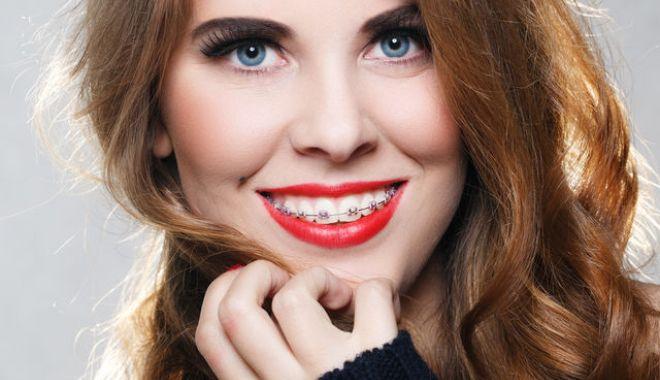 Foto: Vreți un zâmbet frumos? Cum trebuie alese aparatele dentare
