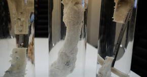 Fragment de os dezvoltat în laborator, implantat cu succes în tibia fracturată a unui bărbat