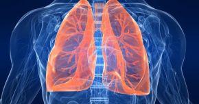Aveți dureri toracice, febră? Este posibil să suferiți de pneumonie