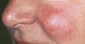 Cum se manifestă acneea rozacee