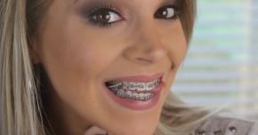 Aparatul dentar nu este doar pentru copii