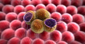 Celulele cancerului mamar au fost transformate, cu succes, �n gr�sime. Procesul opre�te apari�ia metastazelor