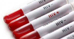 Cum puteţi evita contactarea virusului HIV