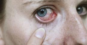 Infecţiile oculare necesită tratamente  de lungă durată