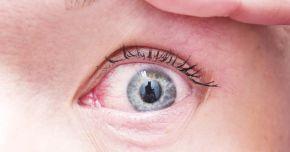 Alergii şi sensibilitate la lumină. De ce ne lăcrimează ochii