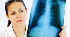Tuberculoza osteo-articulară poate afecta numeroase organe