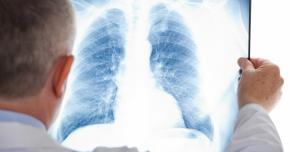 Tuberculoza - cum se manifestă şi cum se răspândeşte boala
