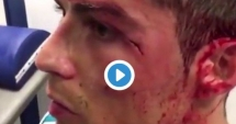 Imagini crunte cu Cristiano Ronaldo, accidentat