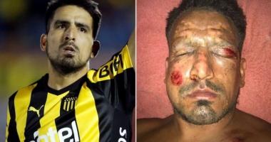 Un fotbalist de top a suferit arsuri grave la faţă de la artificii