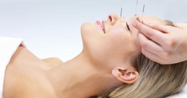 Acupunctura - remediul pentru  a scăpa de durere