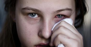 Măsuri de urgenţă  în cazul arsurilor oculare