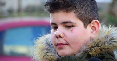 Cazul elevului din Constanţa bătut în şcoală de mamele unor colegi, în atenţia Avocatului Poporului