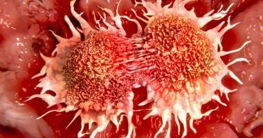 Cancerul trebuie privit ca o boală cronică!