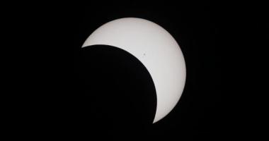 O femeie care a urmărit eclipsa solară fără protecție a dezvoltat o ''semilună neagră'' în câmpul vizual
