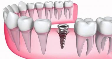 Paşi esențiali pentru un implant dentar de succes
