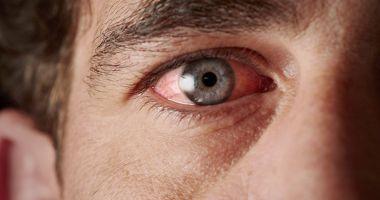 Lăcrimarea excesivă vă înroșește ochii
