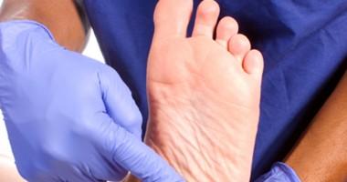 Cum să eviţi amputarea piciorului atunci când ai diabet