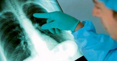 Cazurile de deces din cauza tuberculozei, în scădere. Coinfecţiile cu HIV, în creştere