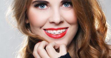 Vreți un zâmbet frumos? Cum trebuie alese aparatele dentare