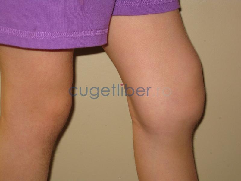 Tratamentul popular al gonartrozei de gradul 2 al articula?iei genunchiului