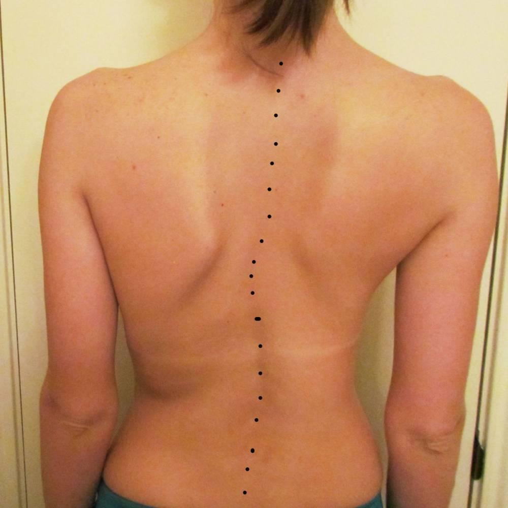 Tratamentul proeminen?elor video coloanei vertebrale cervicale