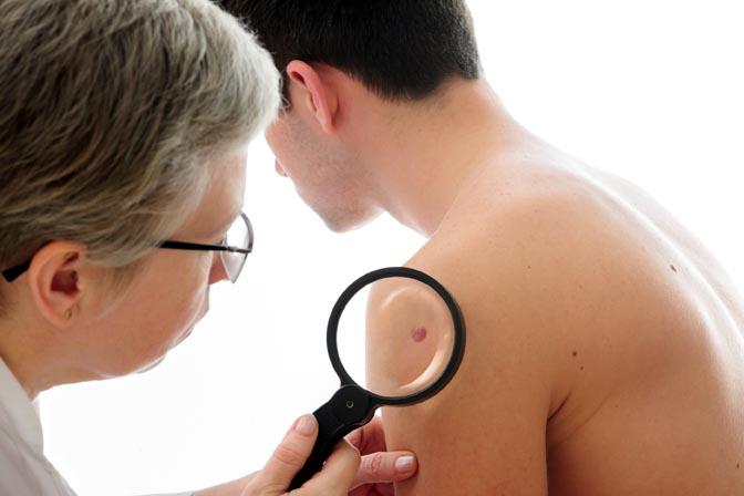 dermatita atopica poze adulticide